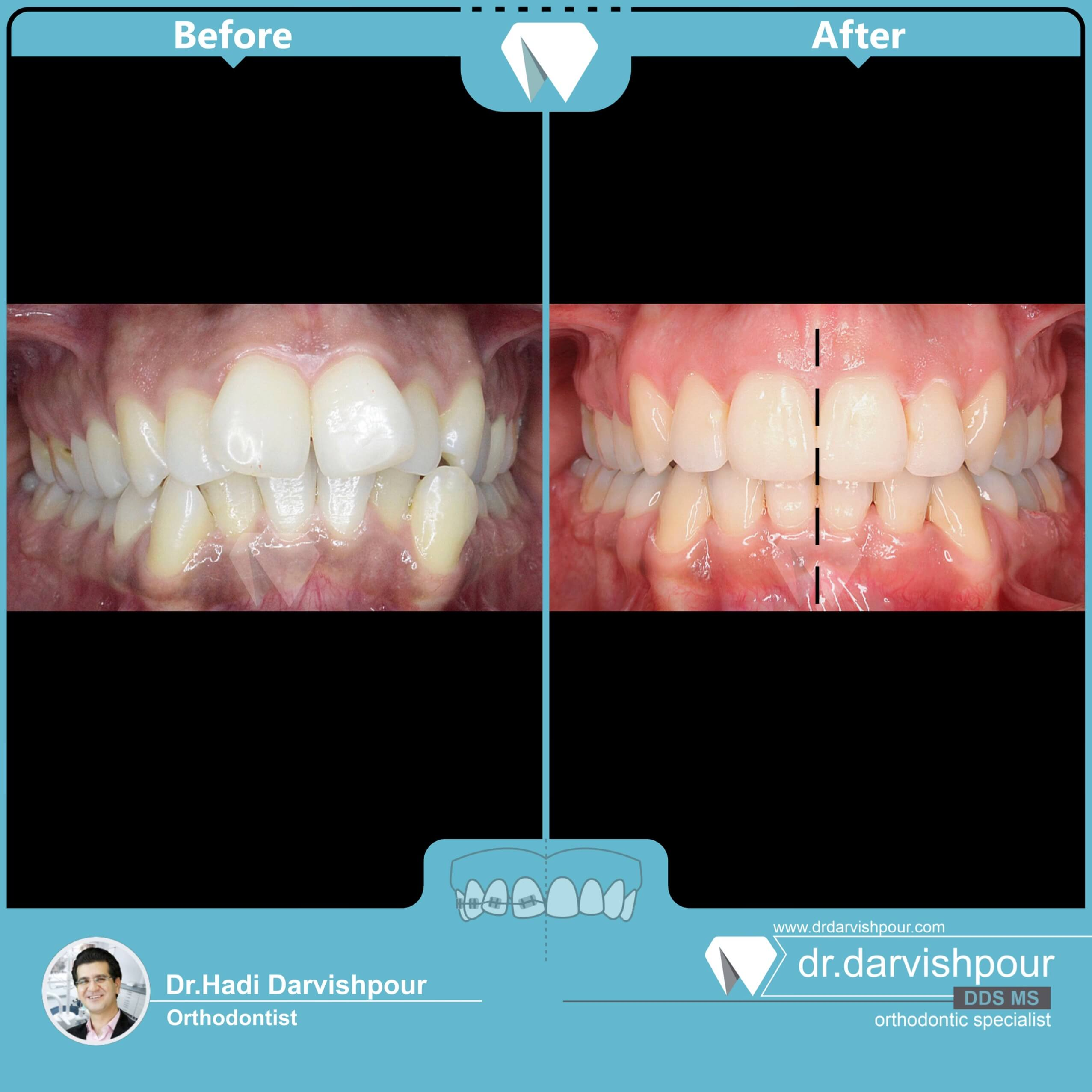 1744orthodontics-before-after-photo