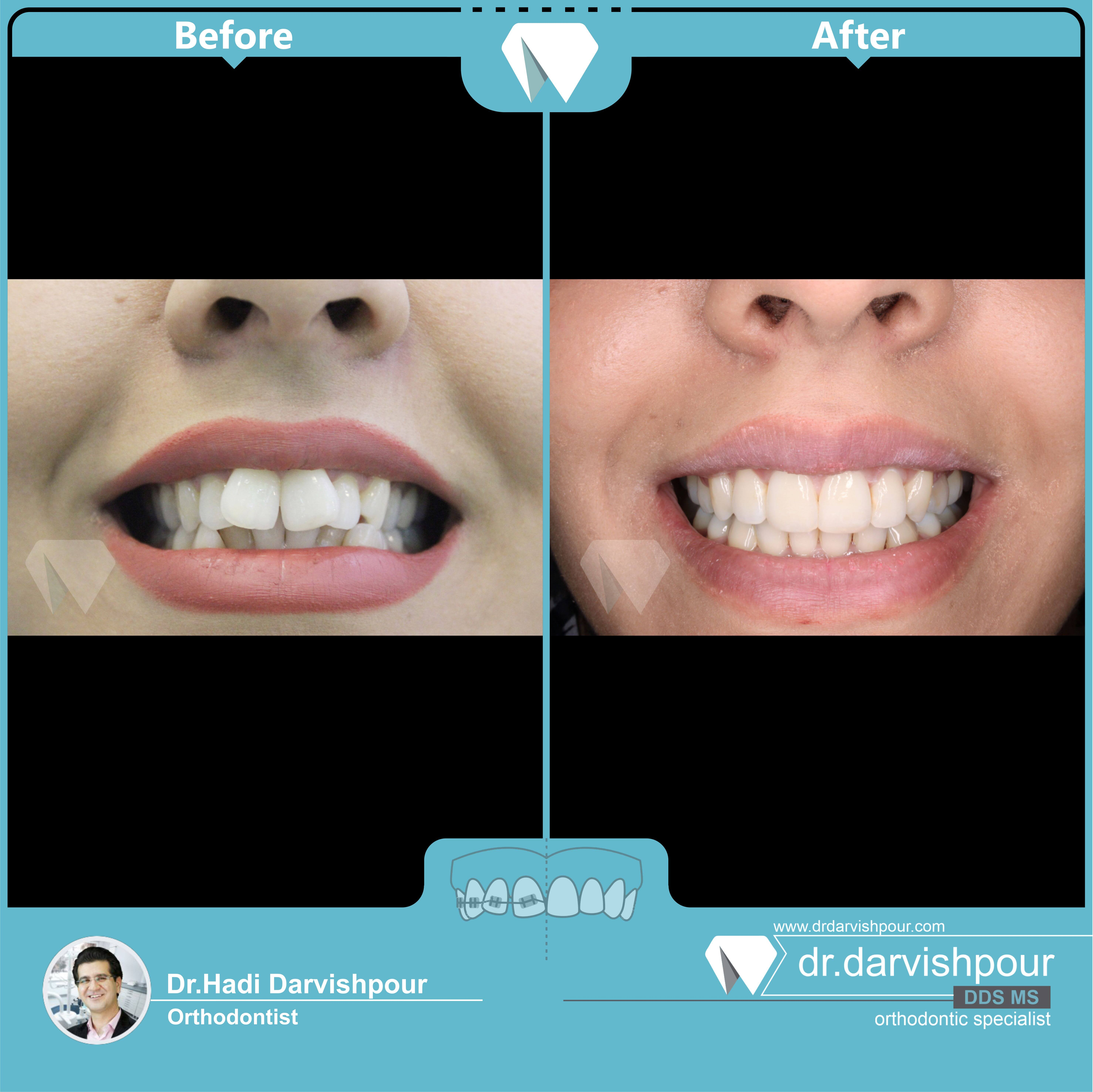 1745orthodontics-before-after-photo