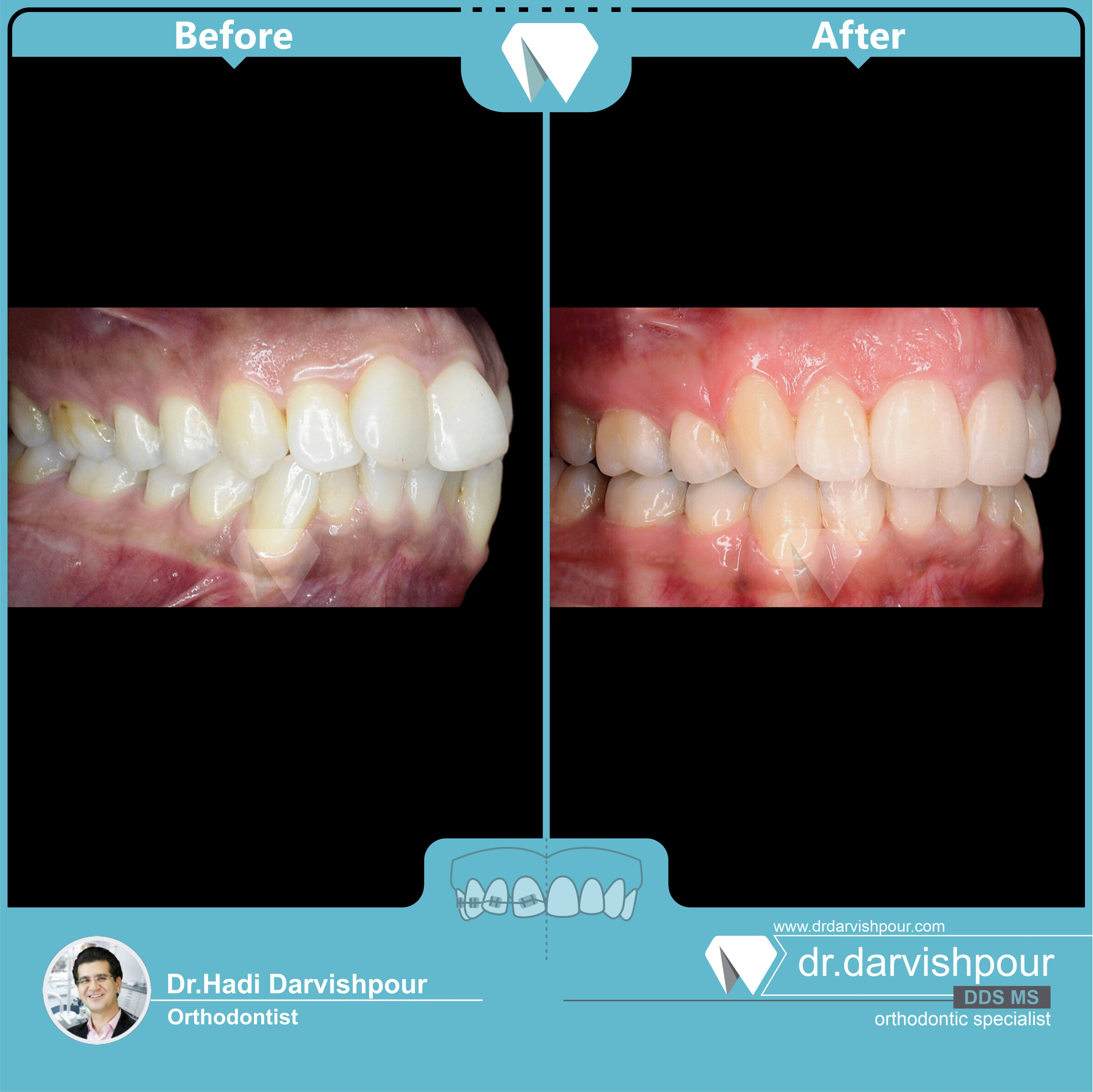 1746orthodontics-before-after-photo