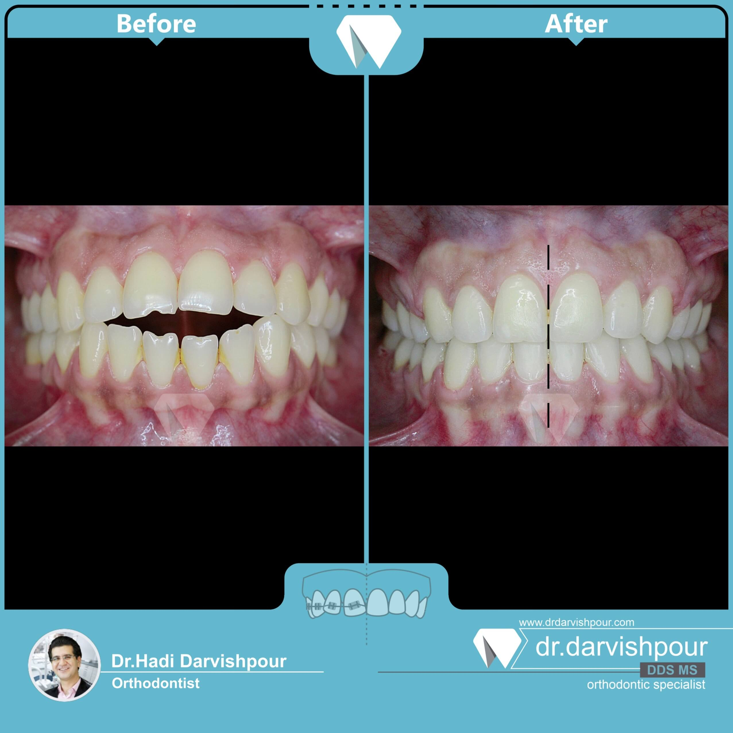 1748orthodontics-before-after-photo