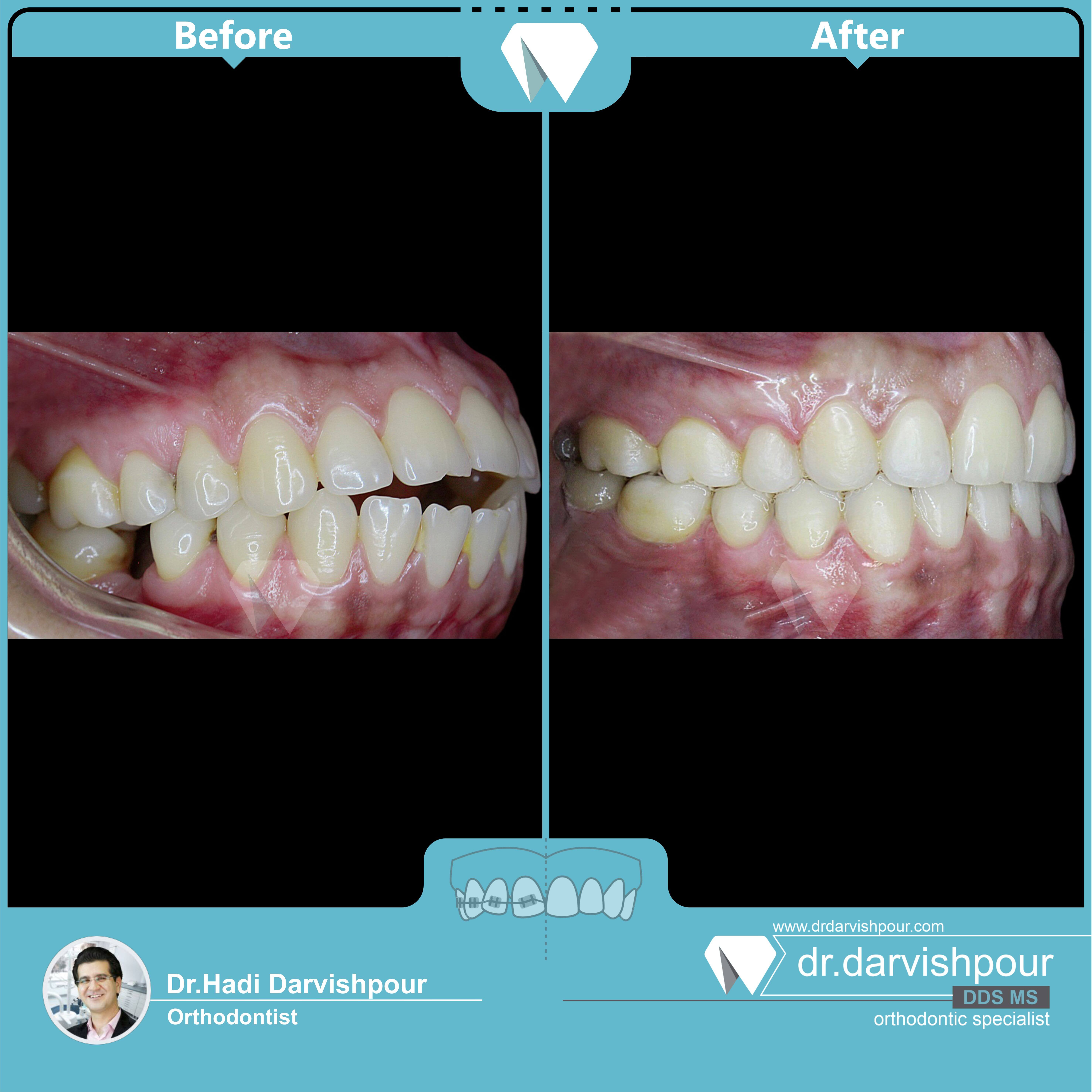 1750orthodontics-before-after-photo