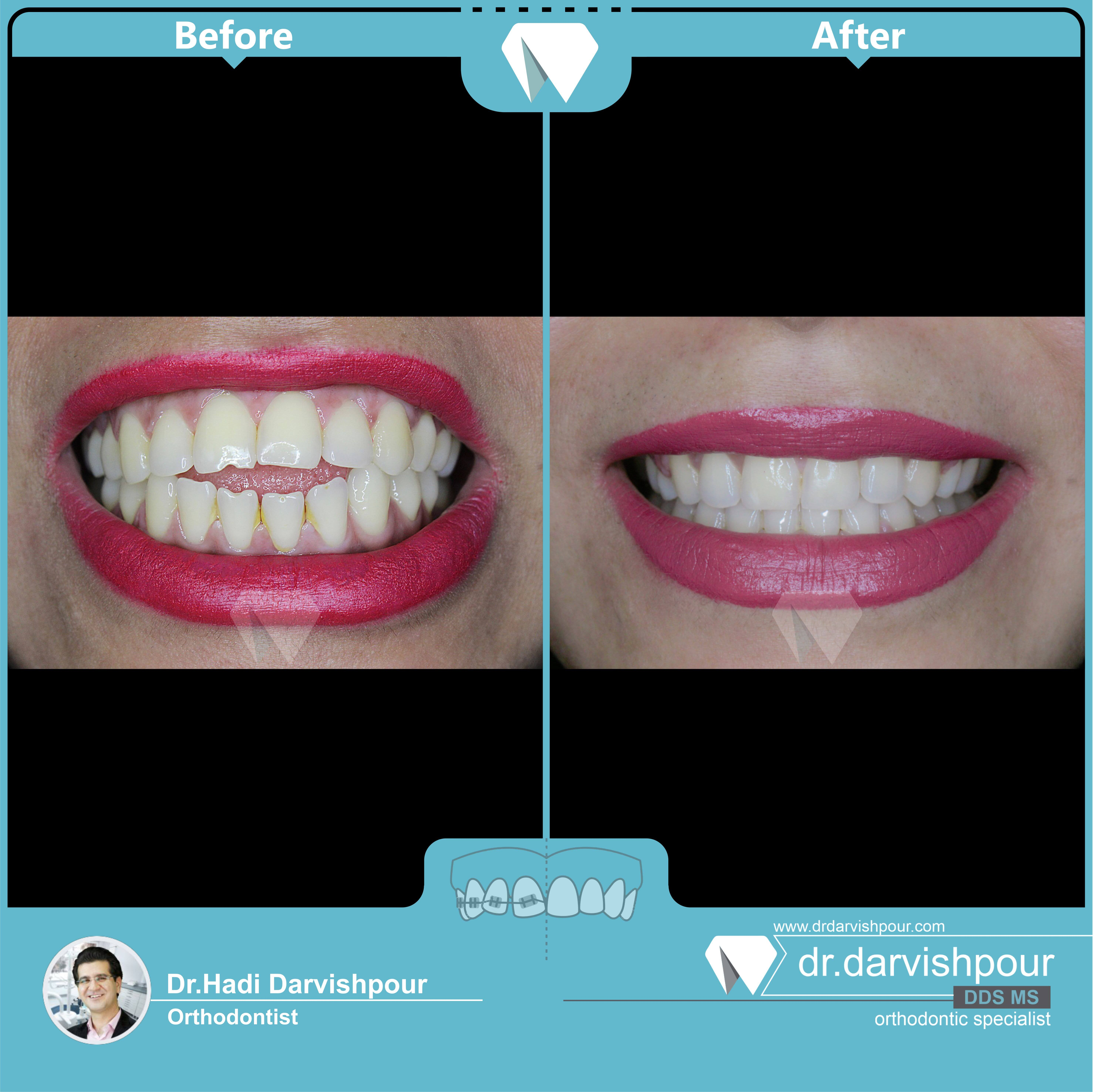 1751orthodontics-before-after-photo