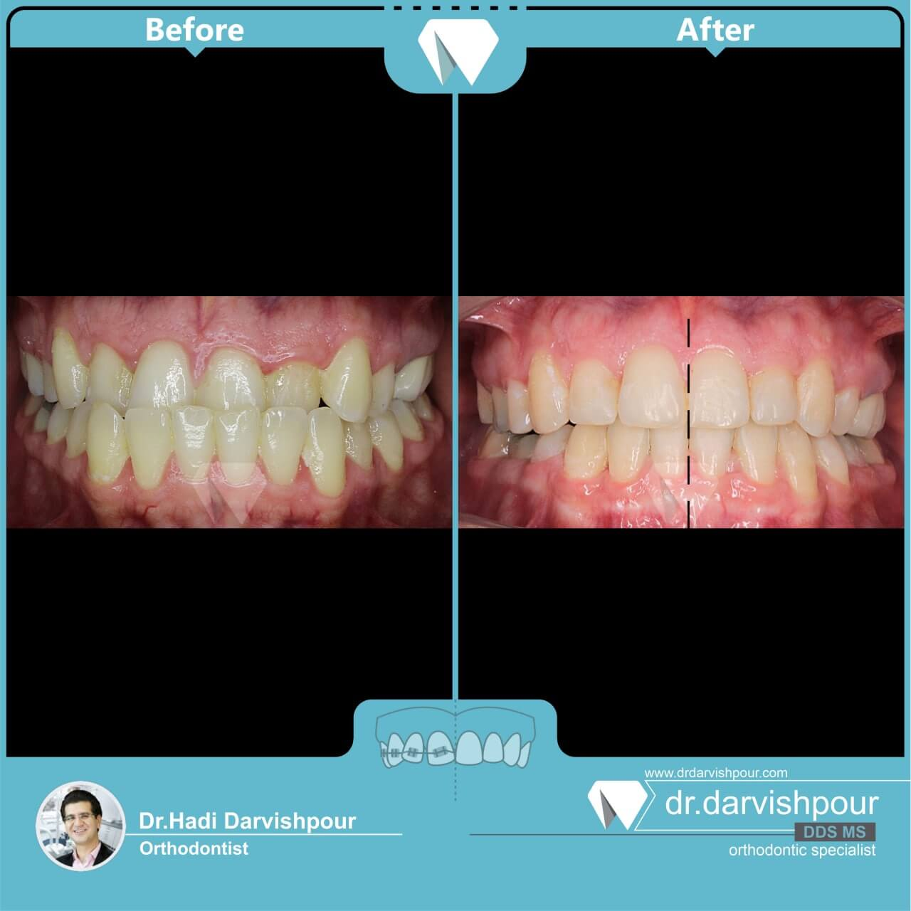 1753orthodontics-before-after-photo