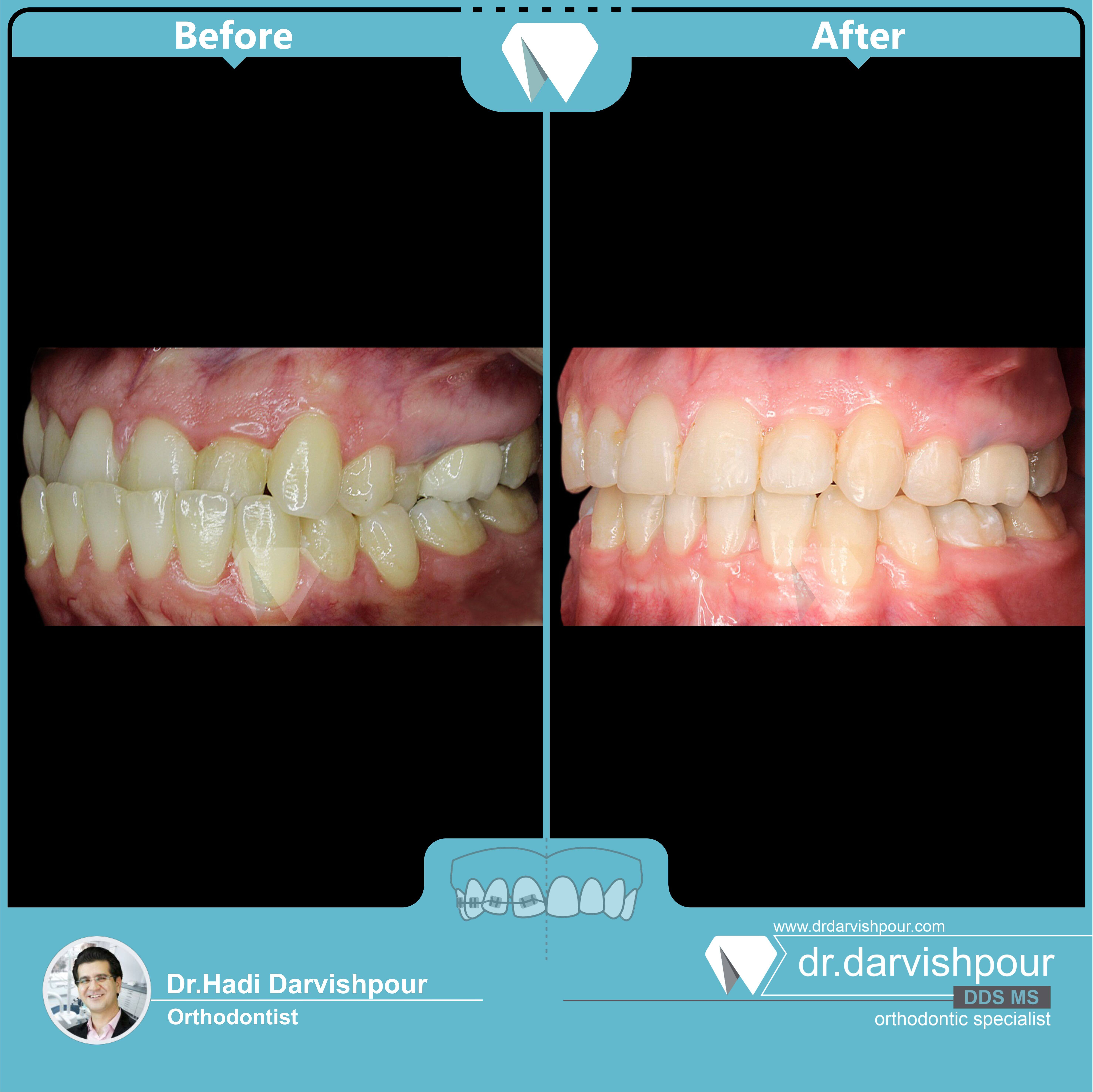 1755orthodontics-before-after-photo