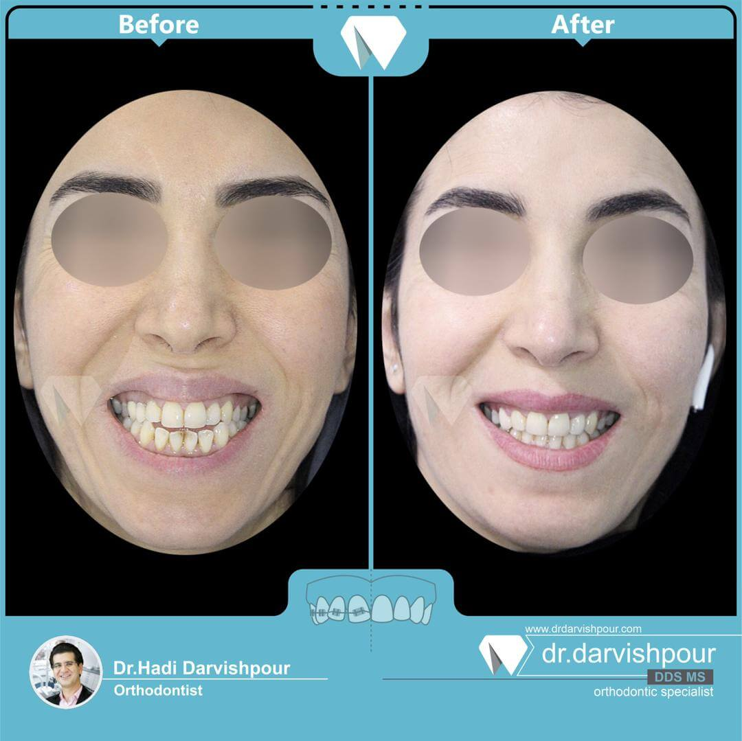 1759orthodontics-before-after-photo