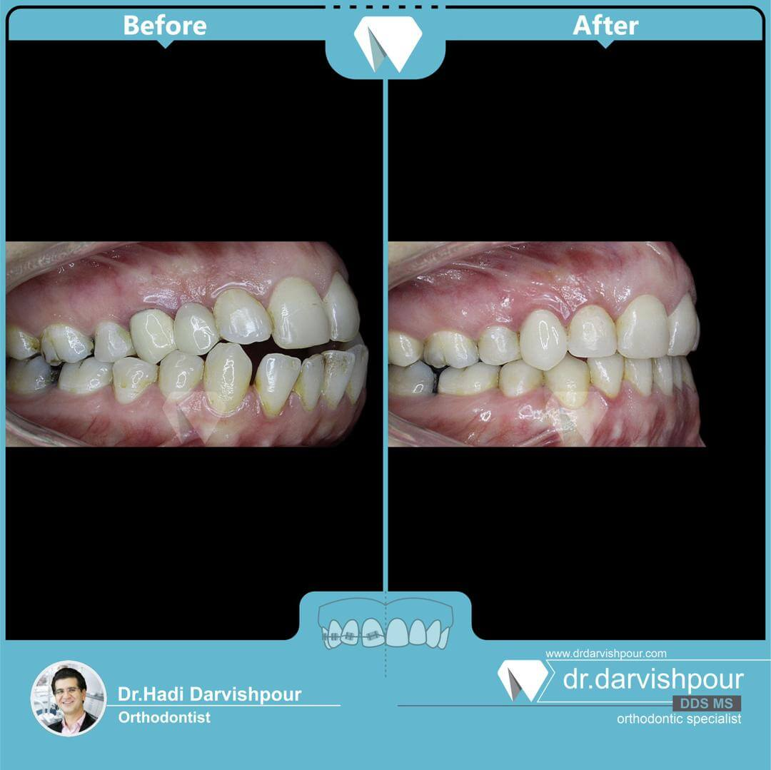 1760orthodontics-before-after-photo