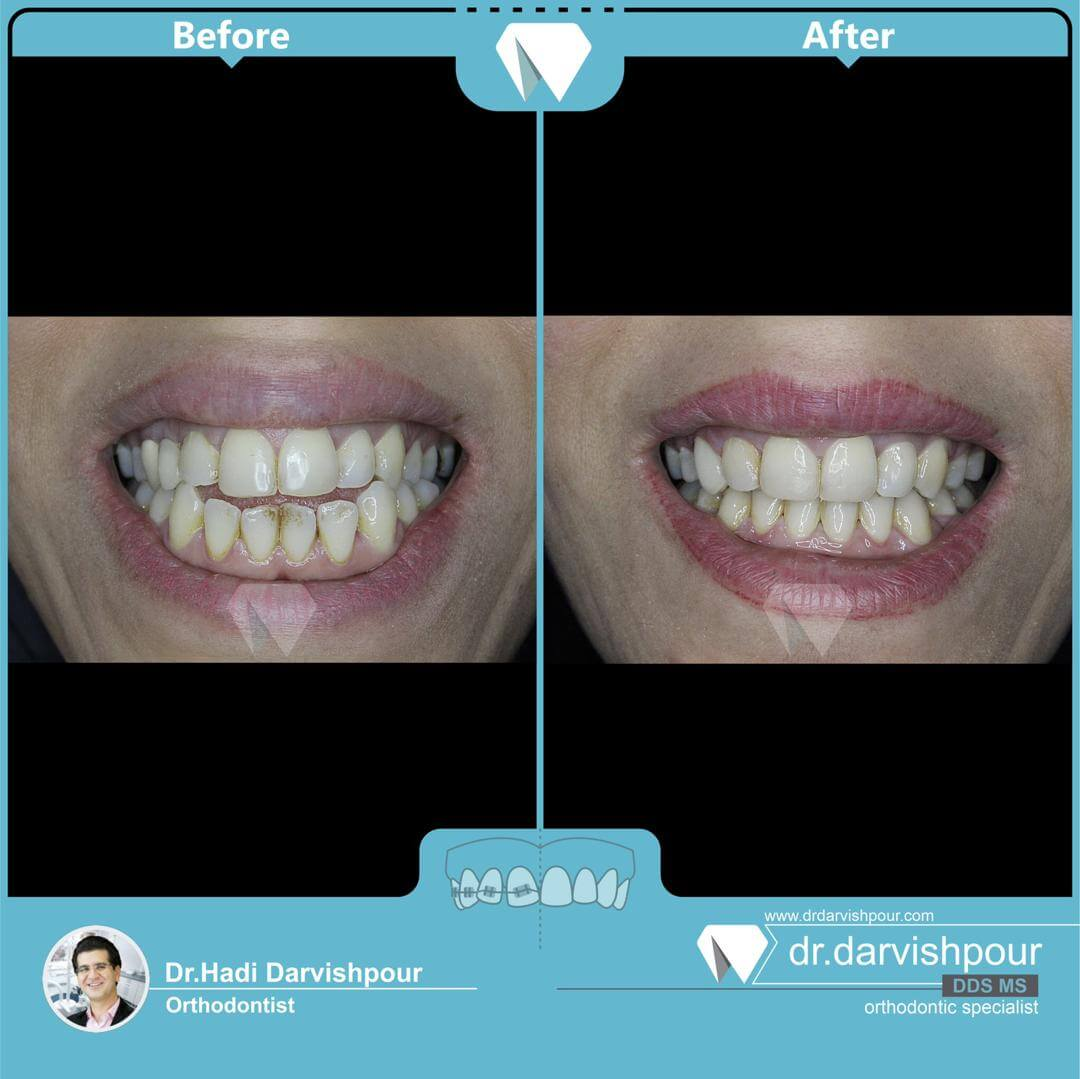 1761orthodontics-before-after-photo