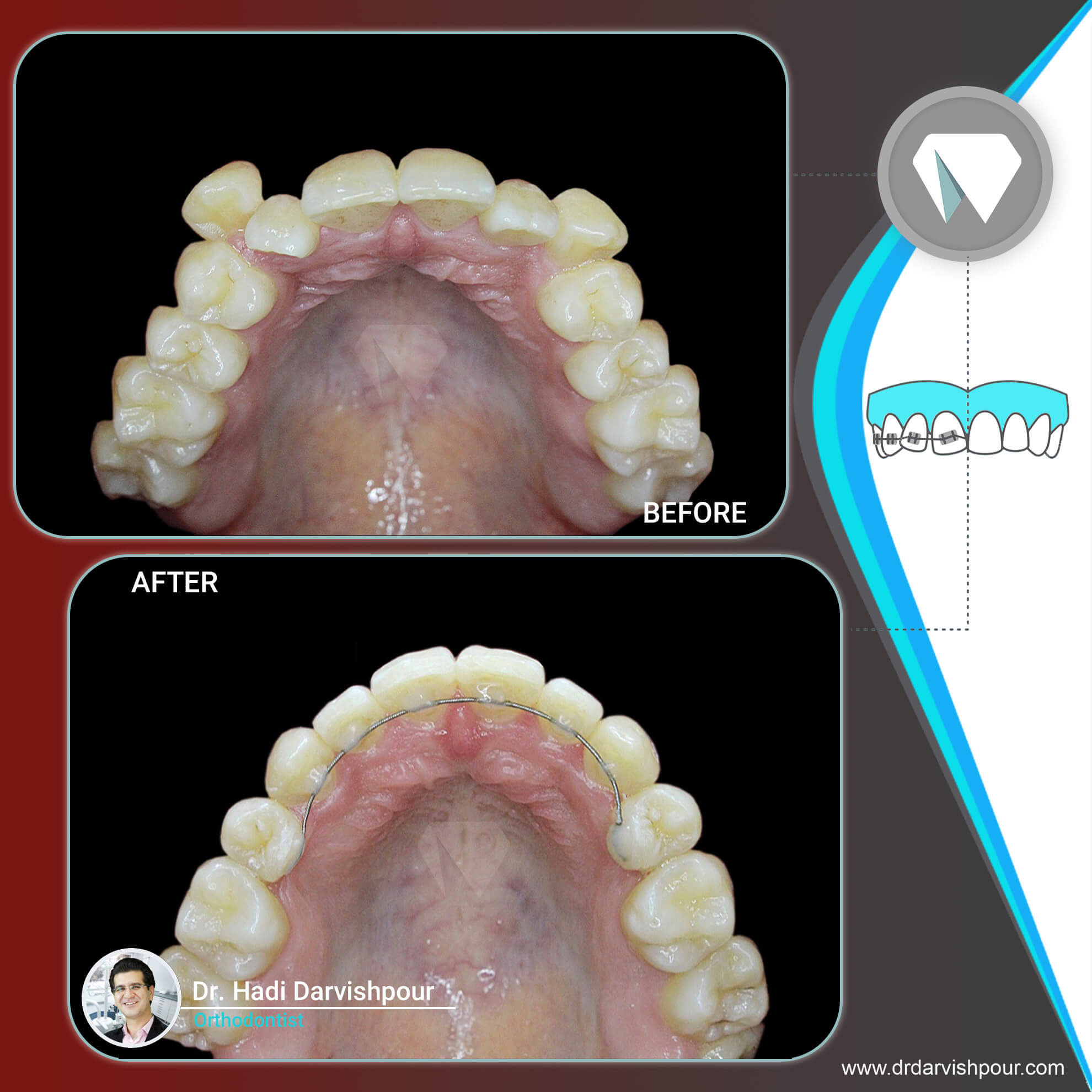 1763orthodontics-before-after-photo