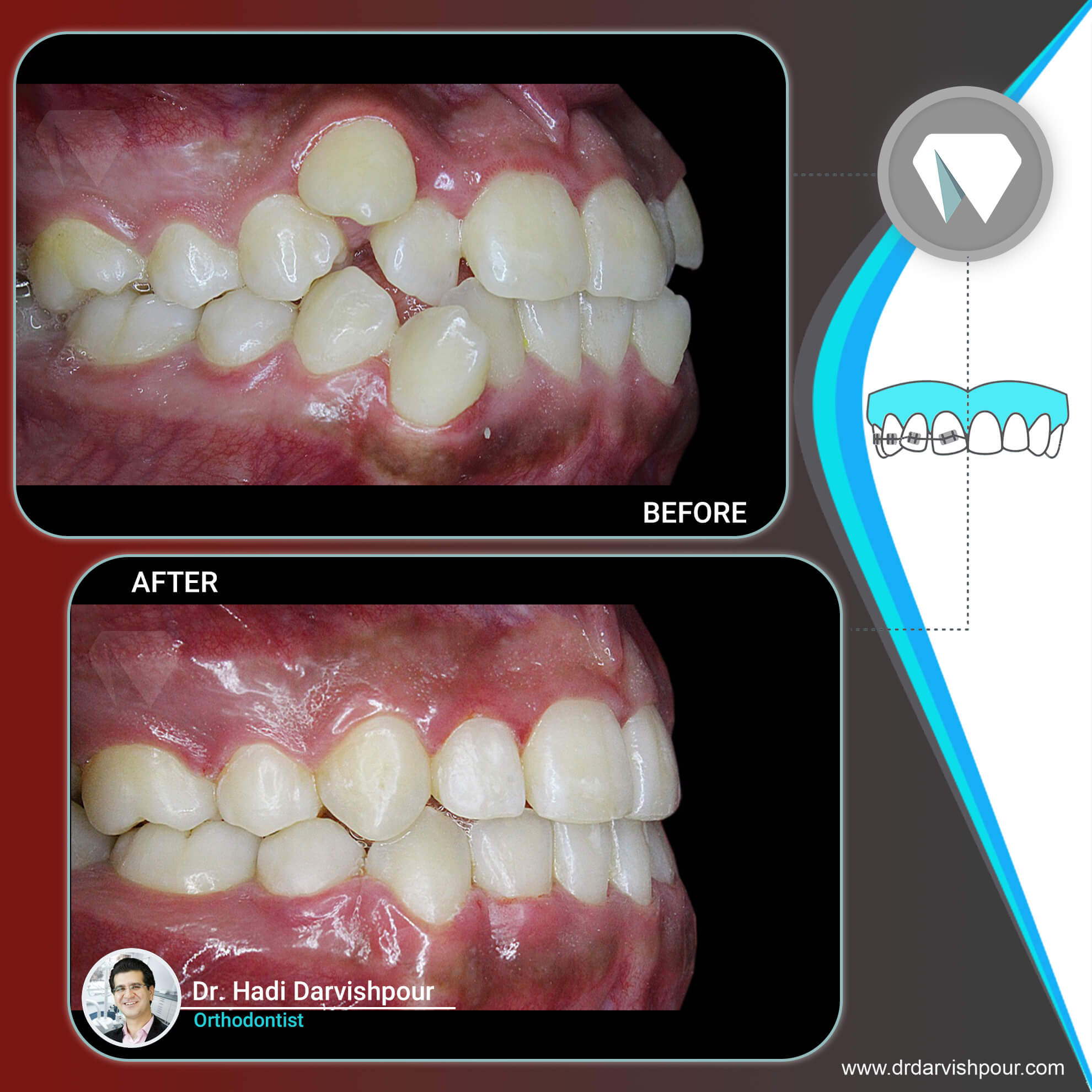 1765orthodontics-before-after-photo