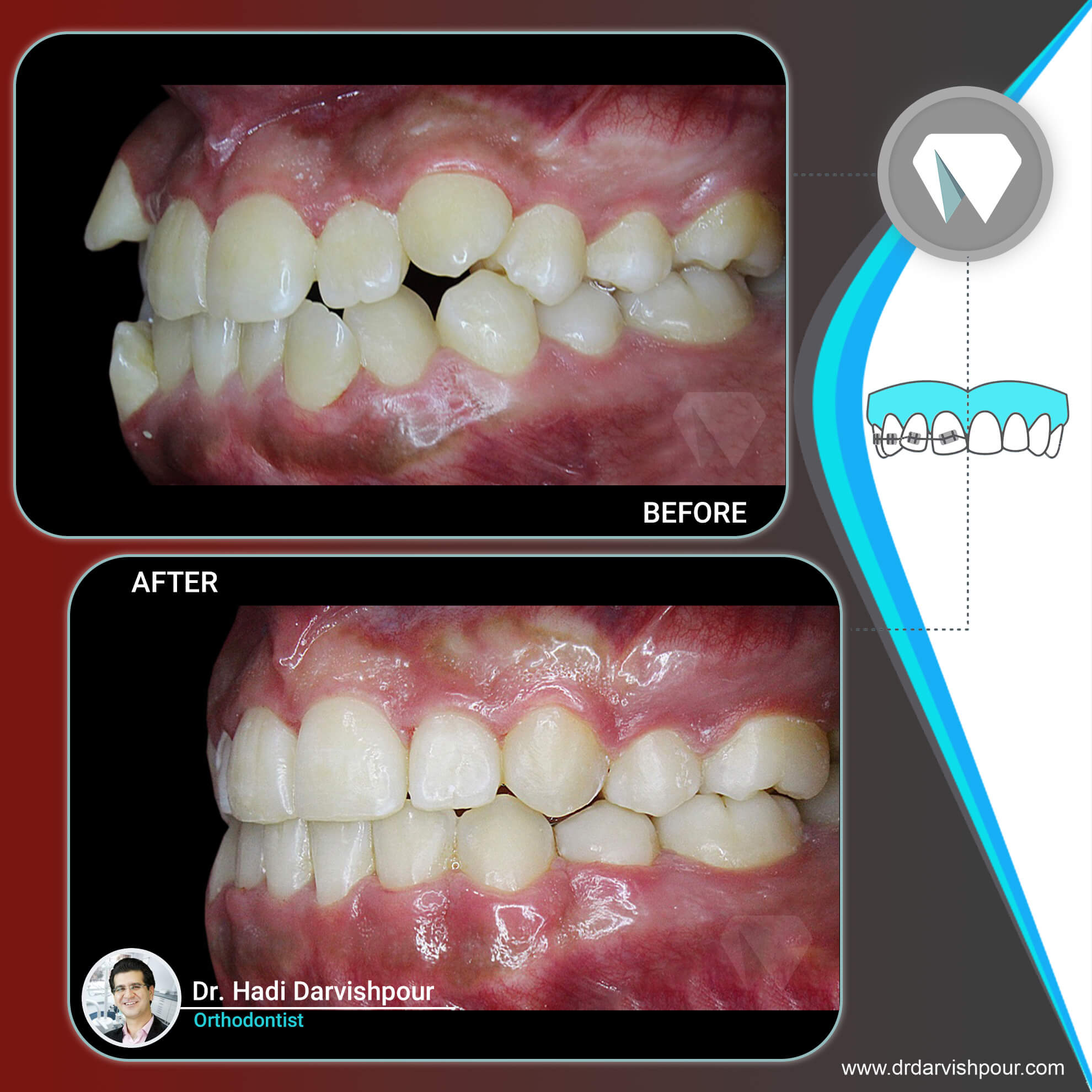 1766orthodontics-before-after-photo