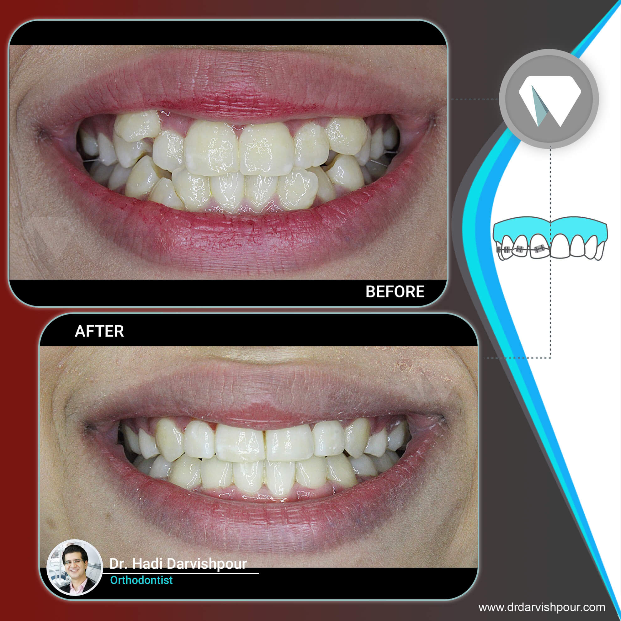 1767orthodontics-before-after-photo