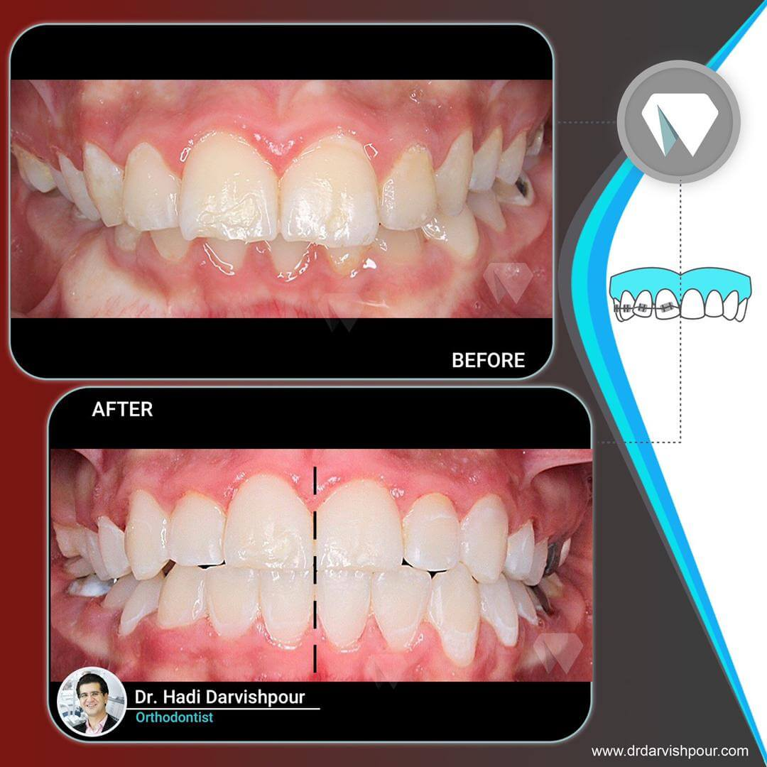 1769orthodontics-before-after-photo