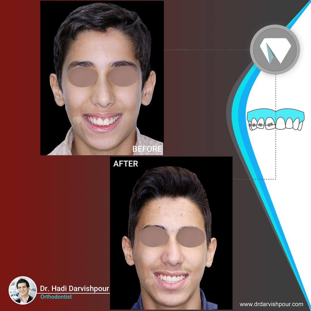 1770orthodontics-before-after-photo