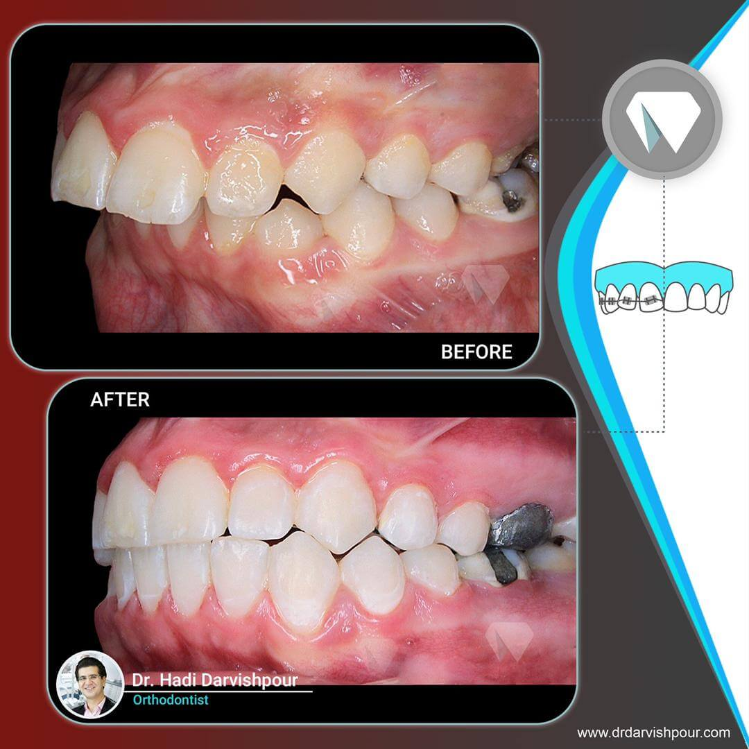 1771orthodontics-before-after-photo
