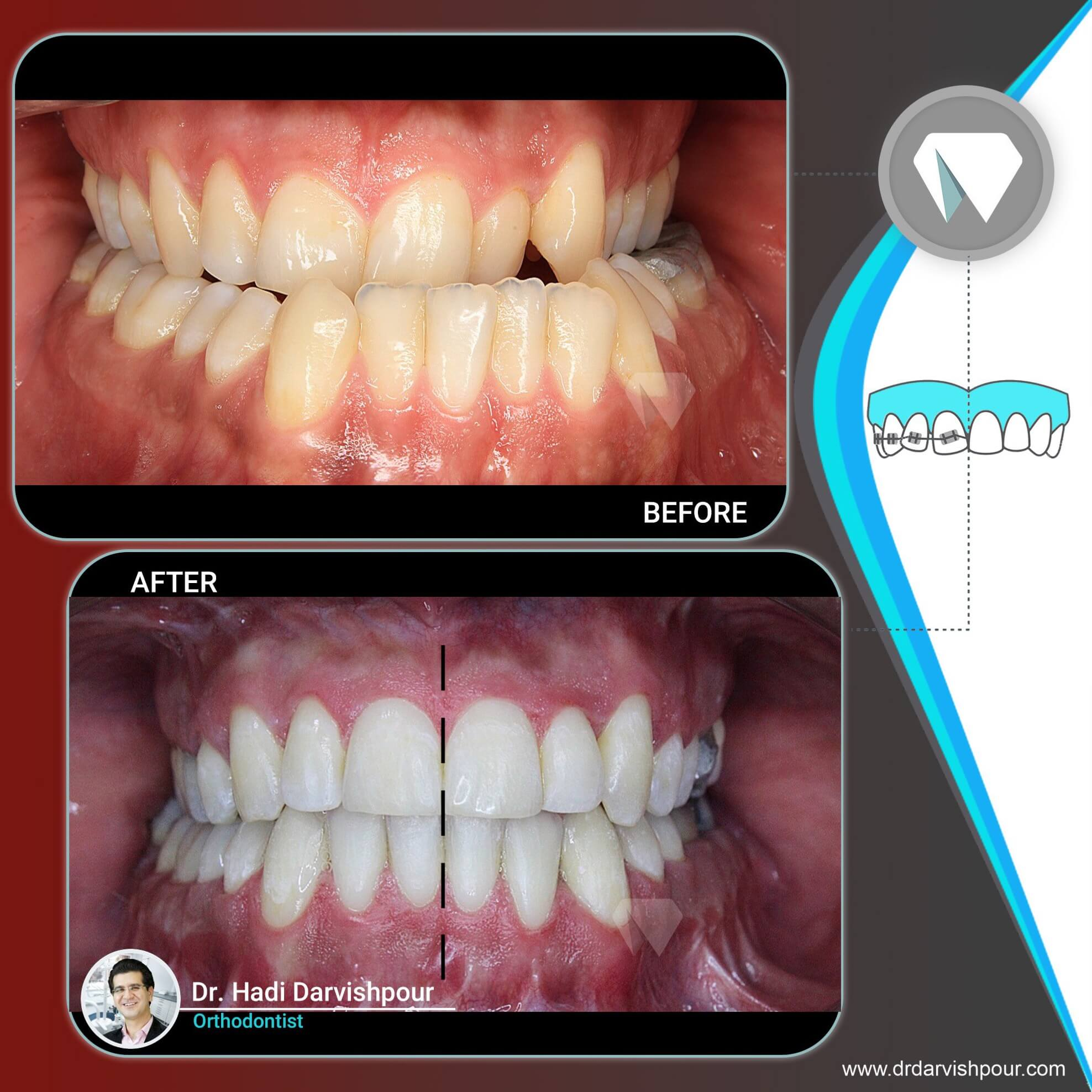 1775orthodontics-before-after-photo