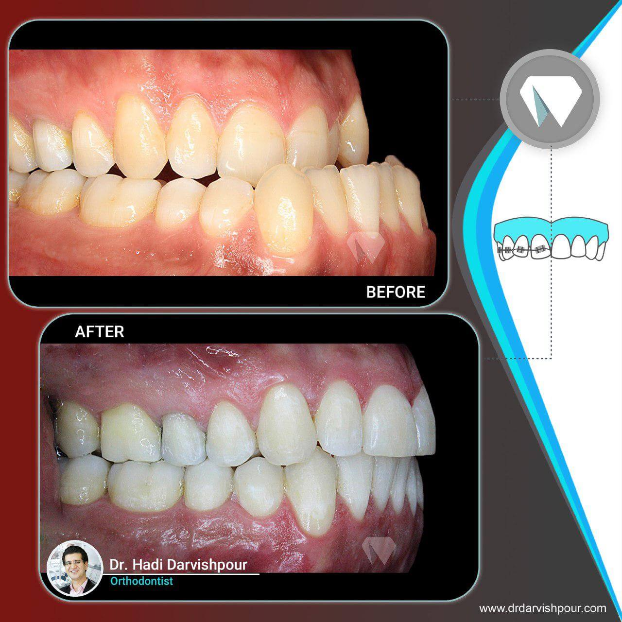 1776orthodontics-before-after-photo