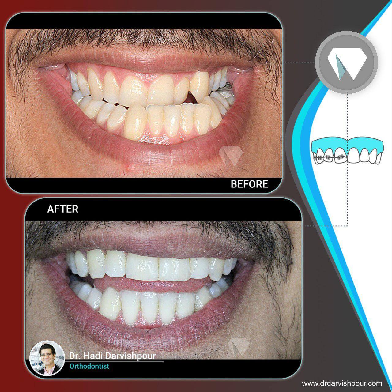 1777orthodontics-before-after-photo