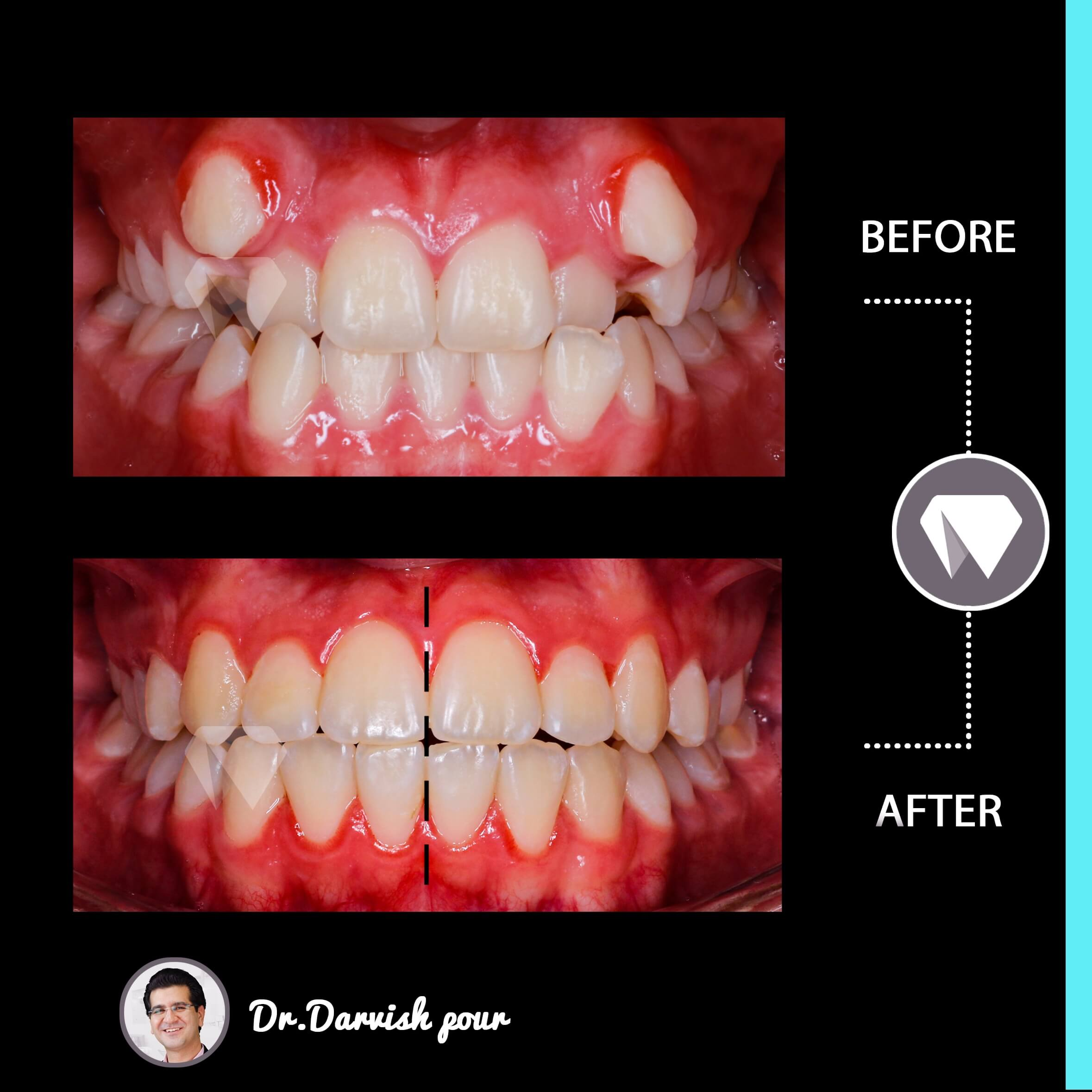 1779orthodontics-before-after-photo