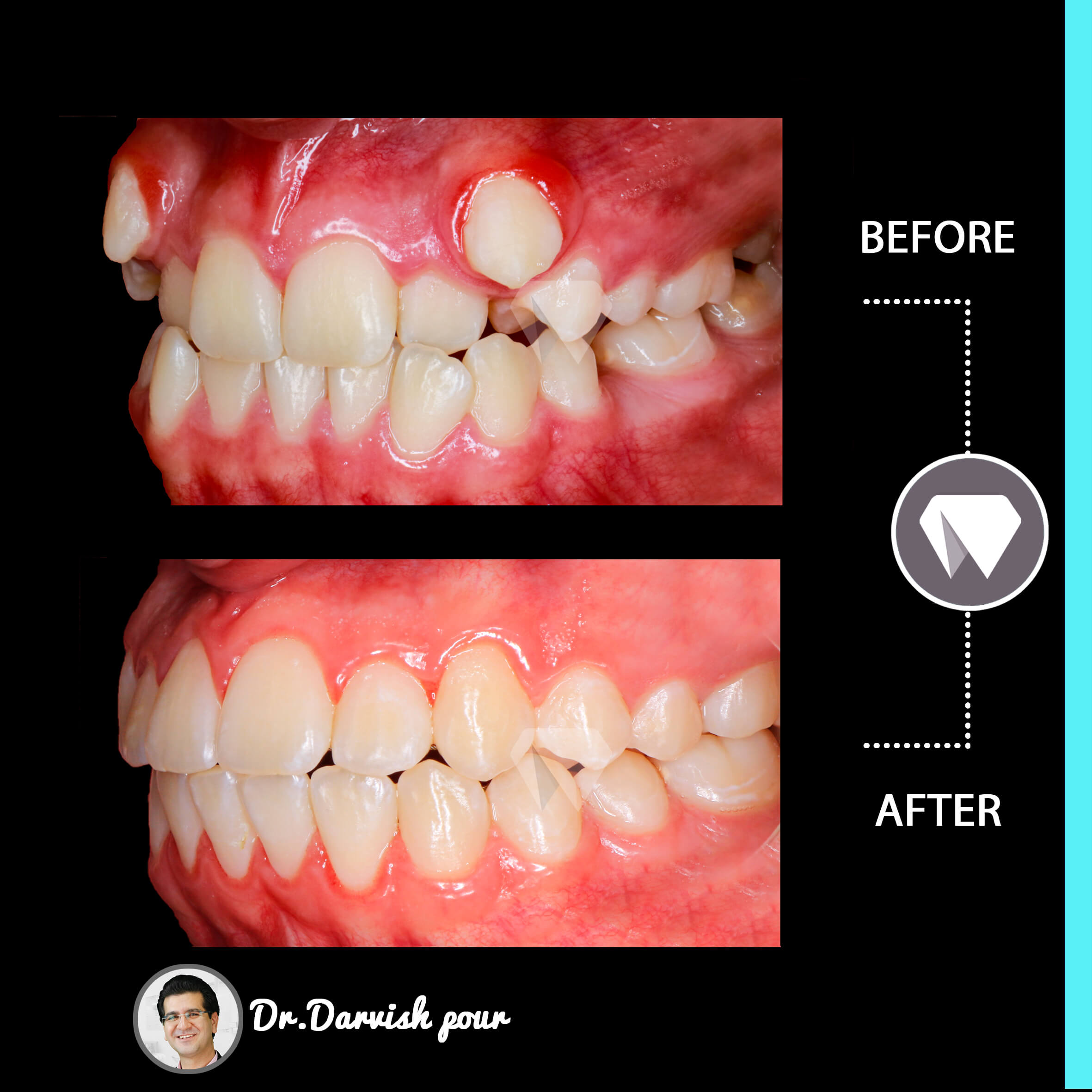 1780orthodontics-before-after-photo