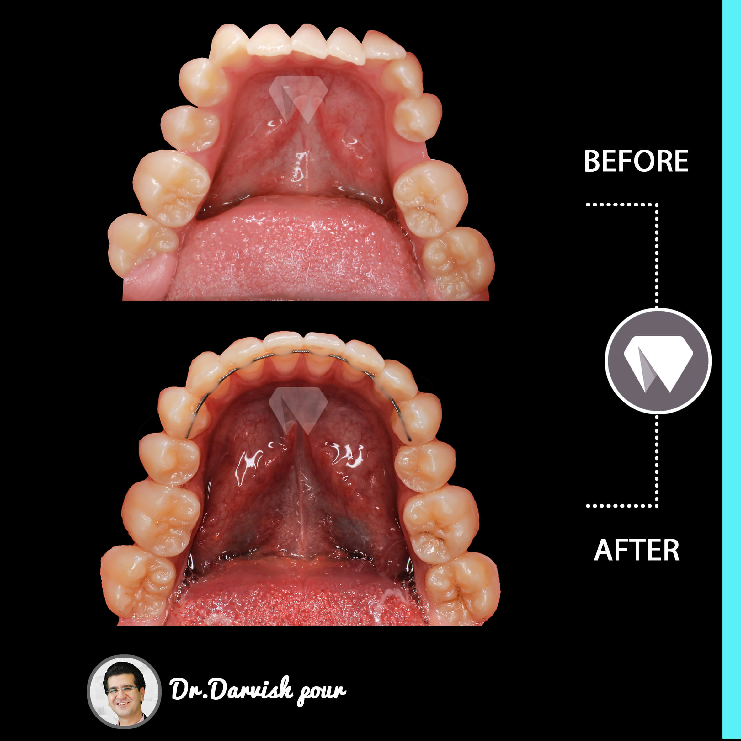 1782orthodontics-before-after-photo