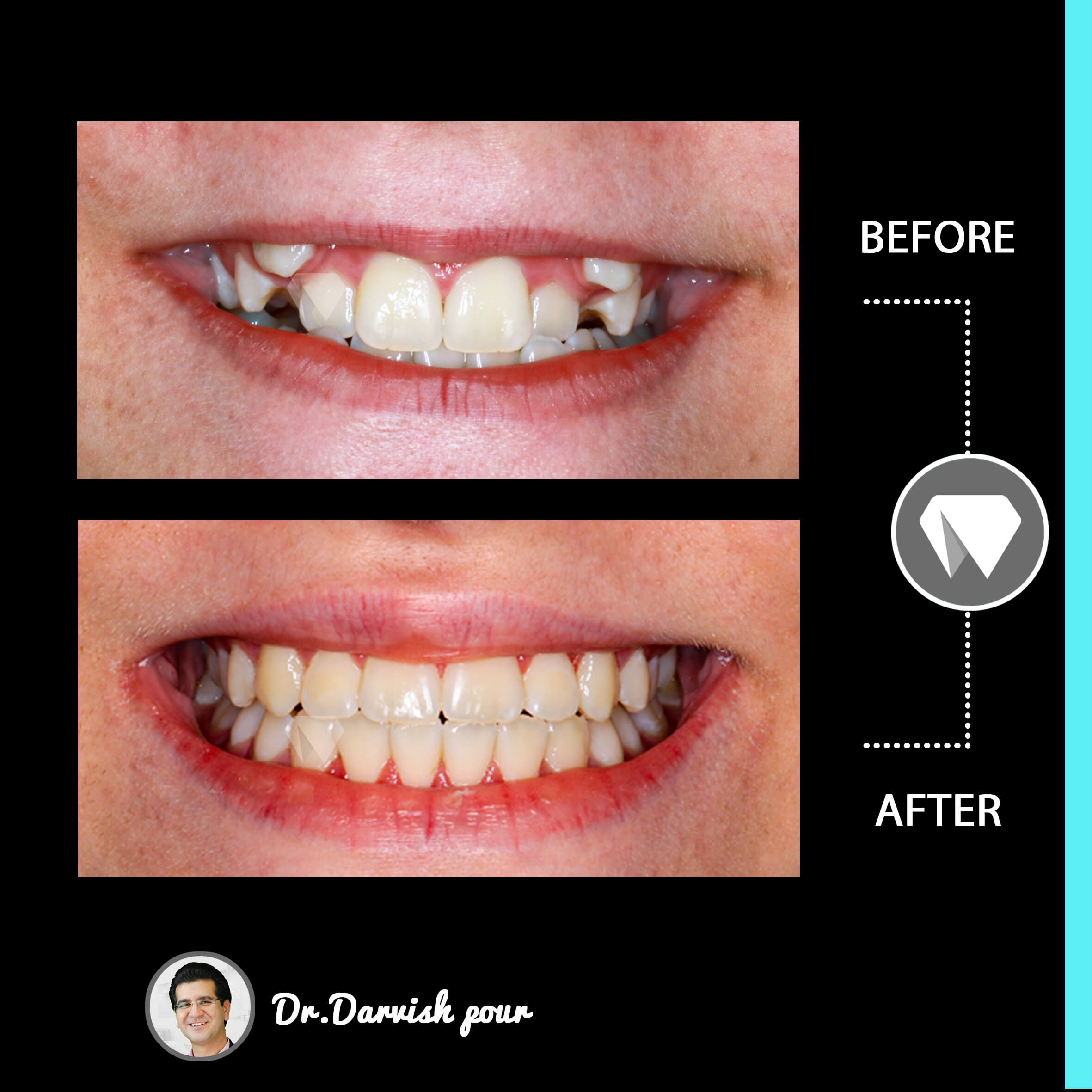 1783orthodontics-before-after-photo