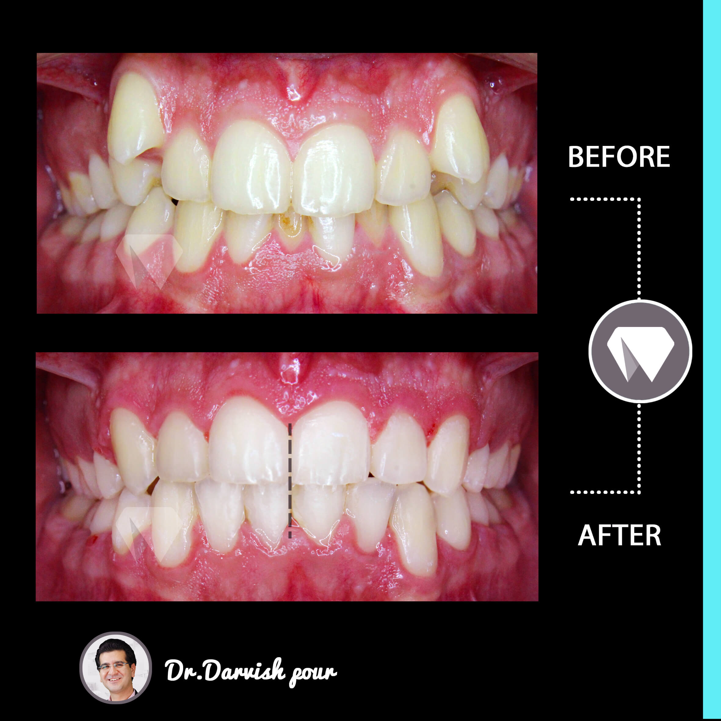 1786orthodontics-before-after-photo