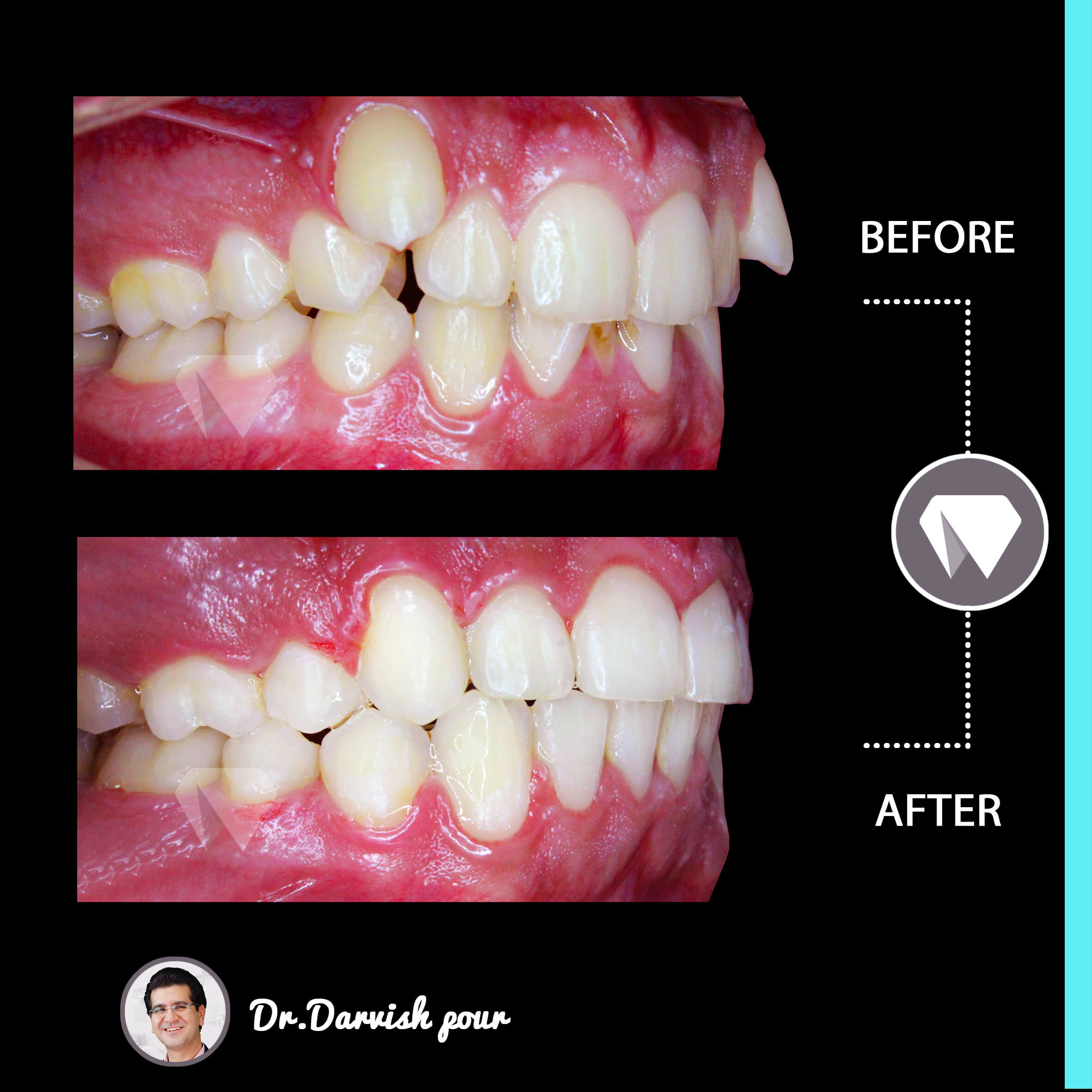 1787orthodontics-before-after-photo