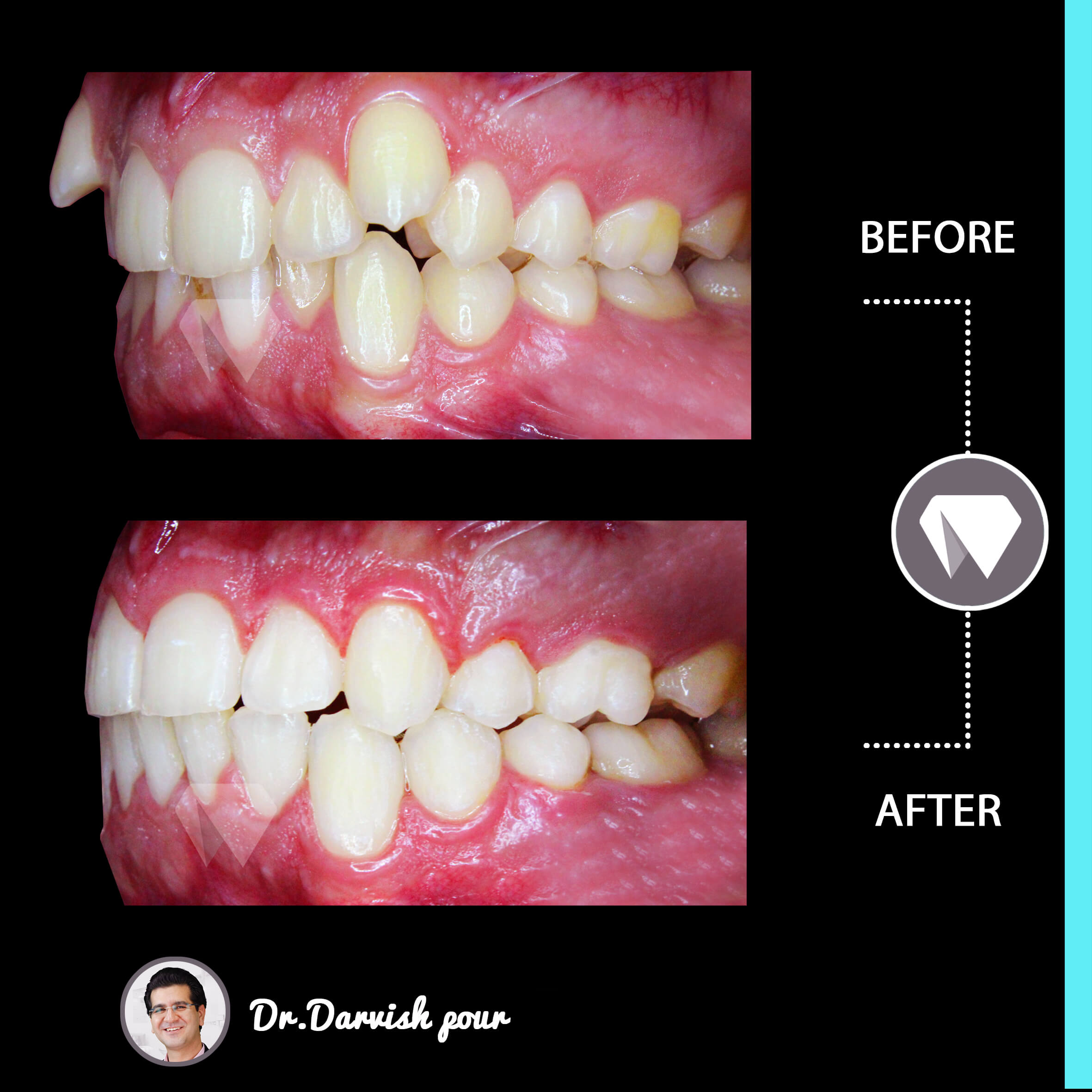 1788orthodontics-before-after-photo