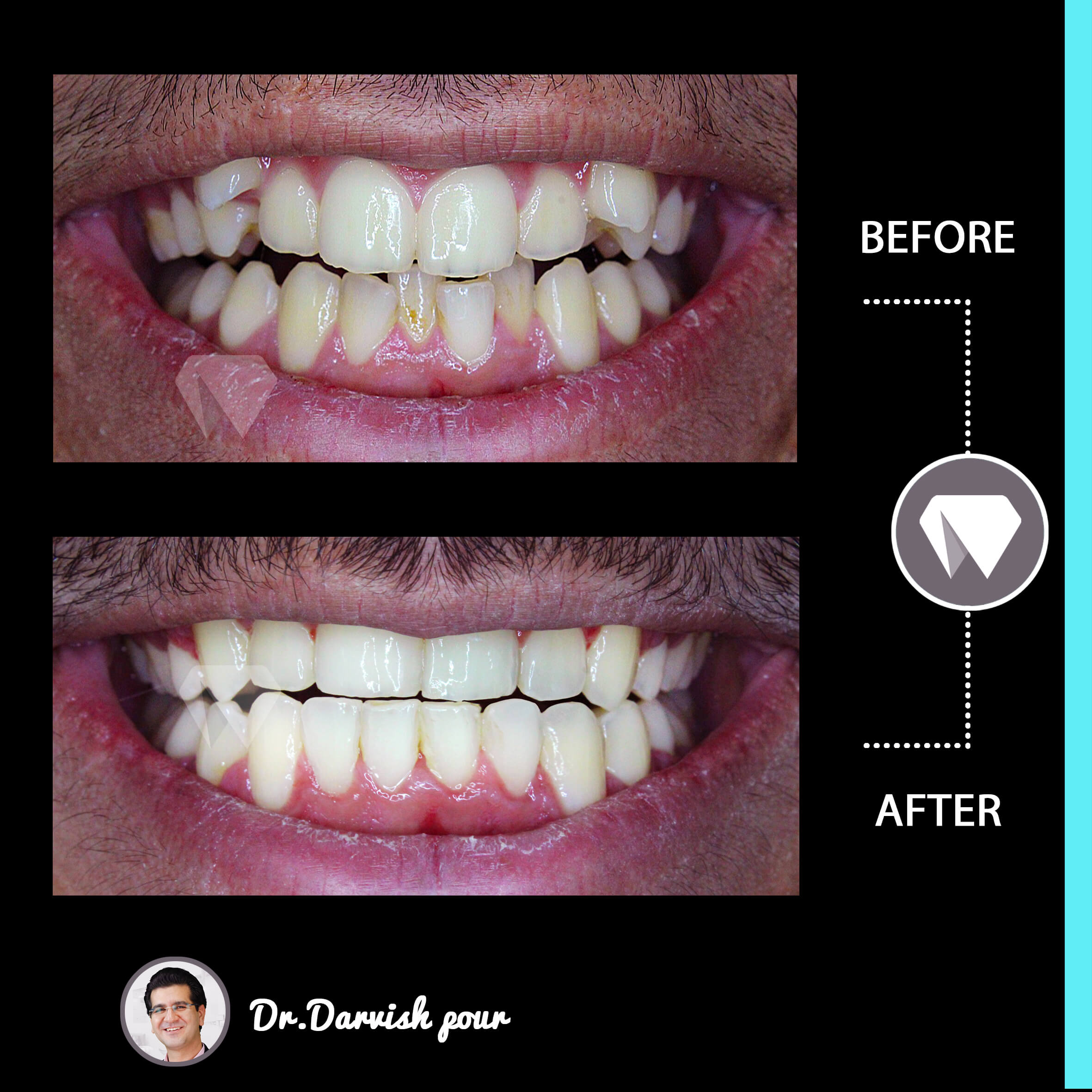 1789orthodontics-before-after-photo