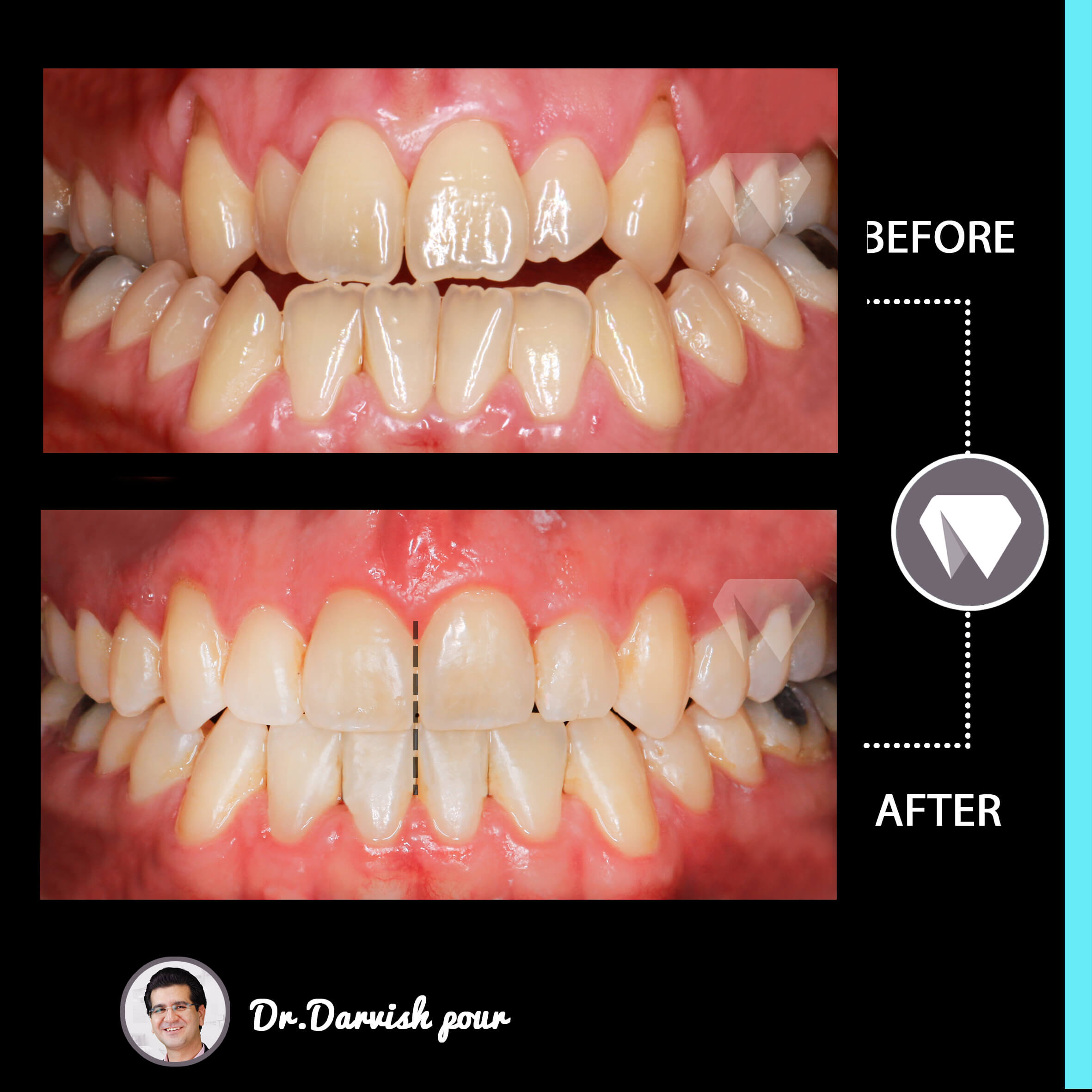 1791orthodontics-before-after-photo
