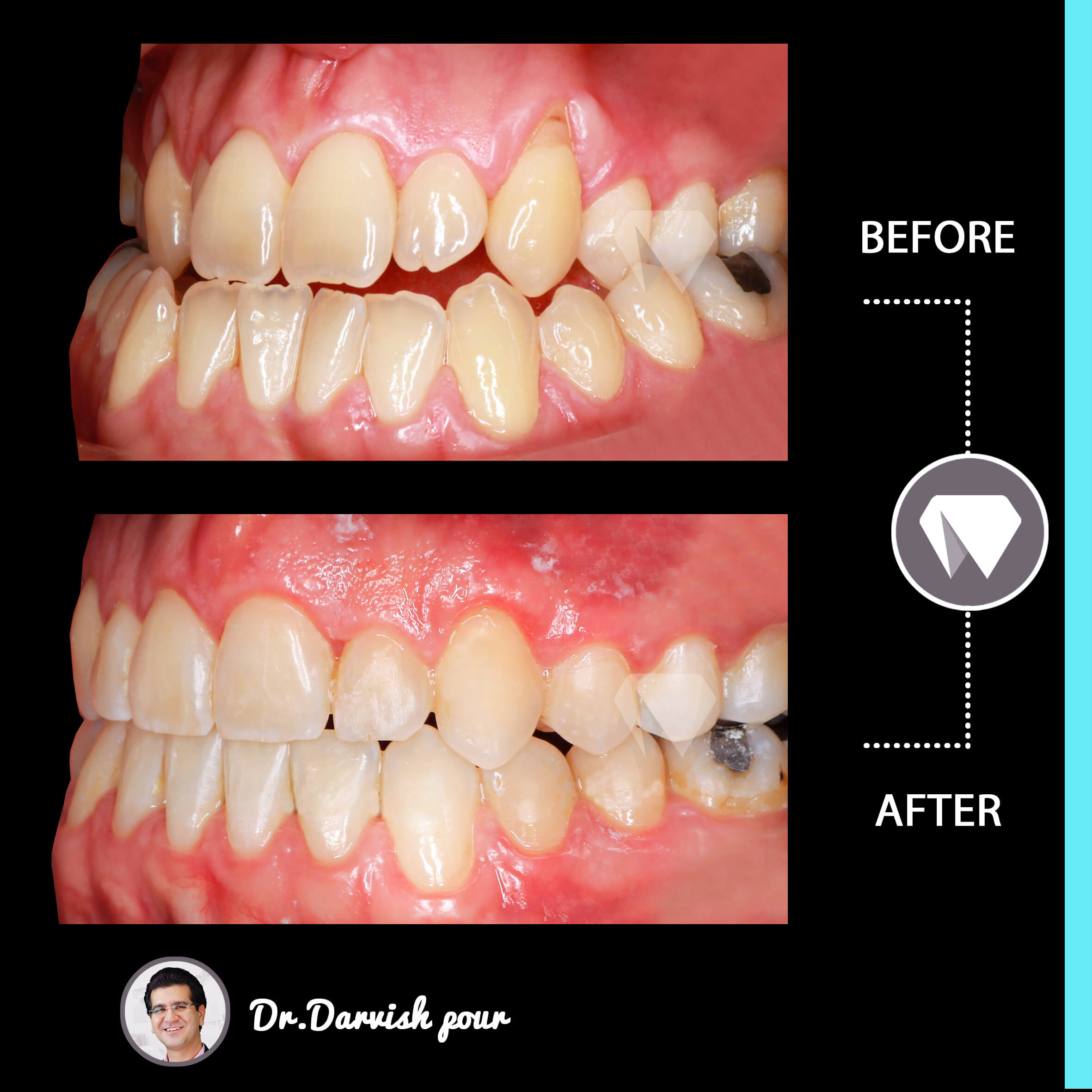 1793orthodontics-before-after-photo