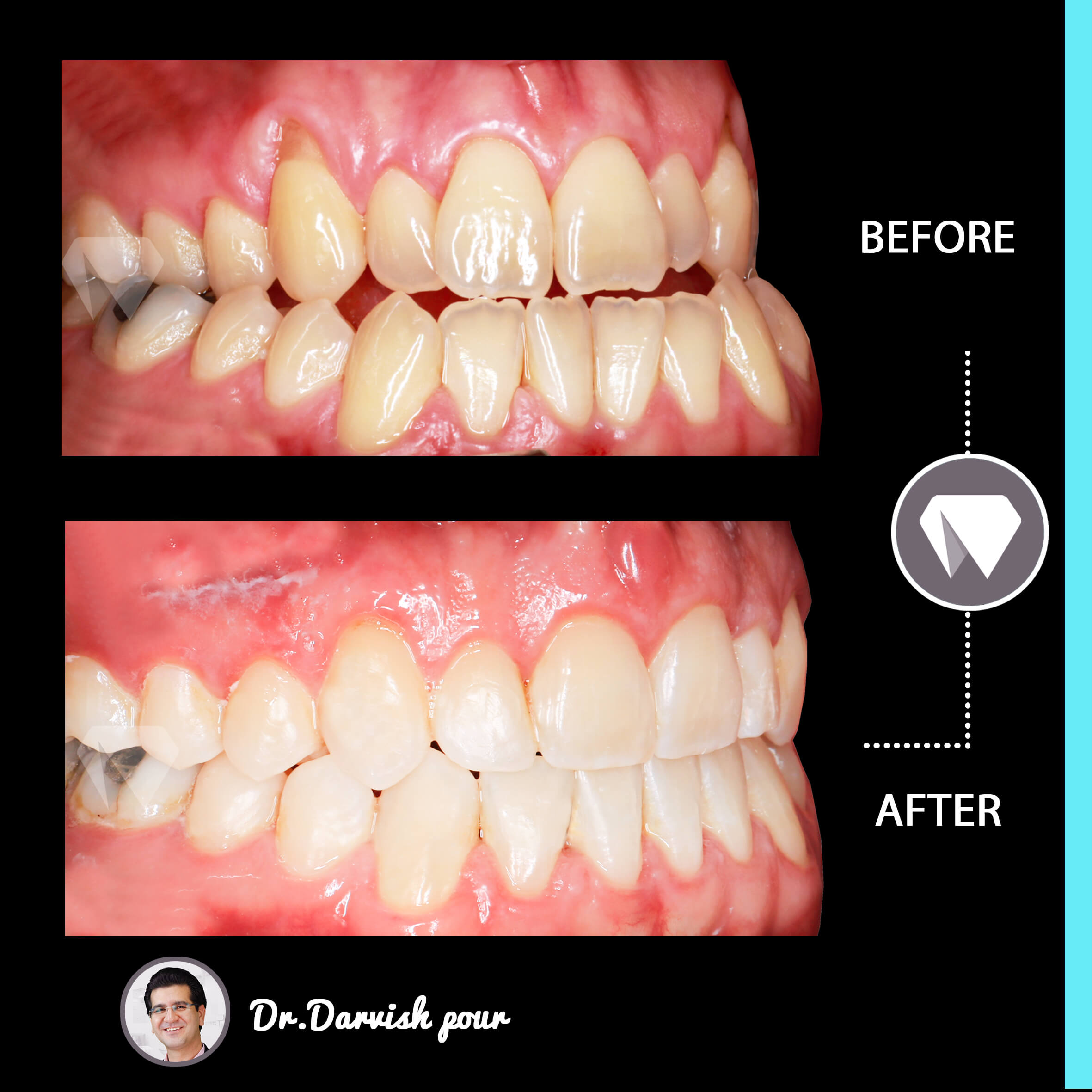 1794orthodontics-before-after-photo