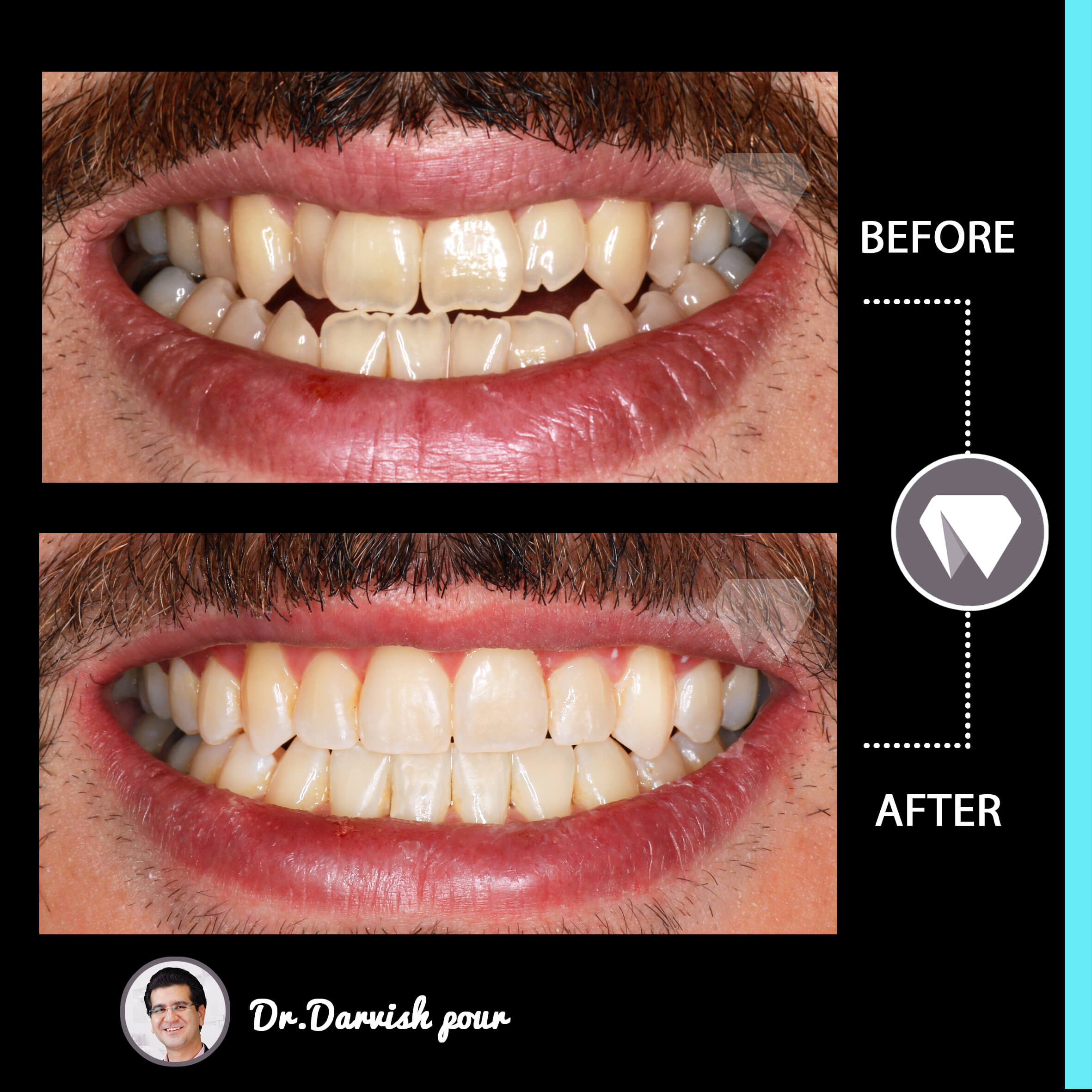 1795orthodontics-before-after-photo